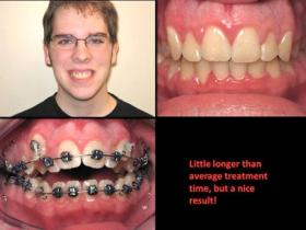 Ortho patient one - after
